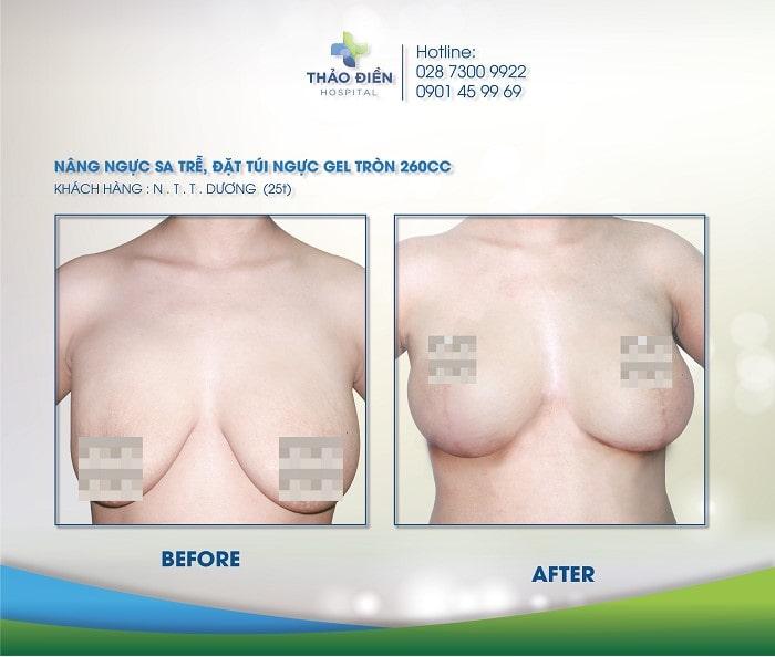 Một vài khách hàng từng nâng ngực túi EuroSilicone tại Bệnh Viện Thảo Điền 2