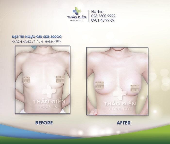 Một vài khách hàng từng nâng ngực túi EuroSilicone tại Bệnh Viện Thảo Điền 1