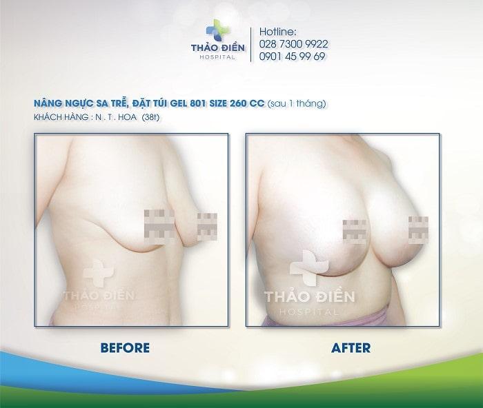 Một vài khách hàng từng nâng ngực túi EuroSilicone tại Bệnh Viện Thảo Điền
