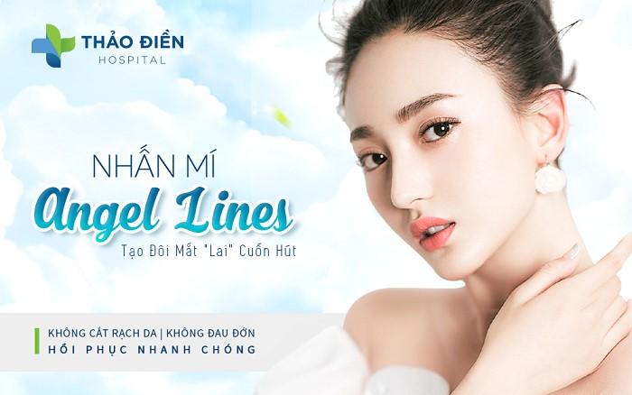 nhan-mi-angel-eyes