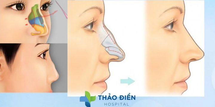 Phương pháp chỉnh sửa mũi gồ