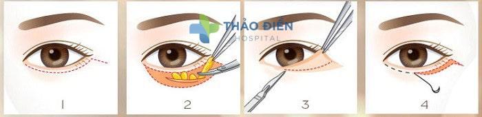 Phương pháp lấy mỡ mí mắt dưới