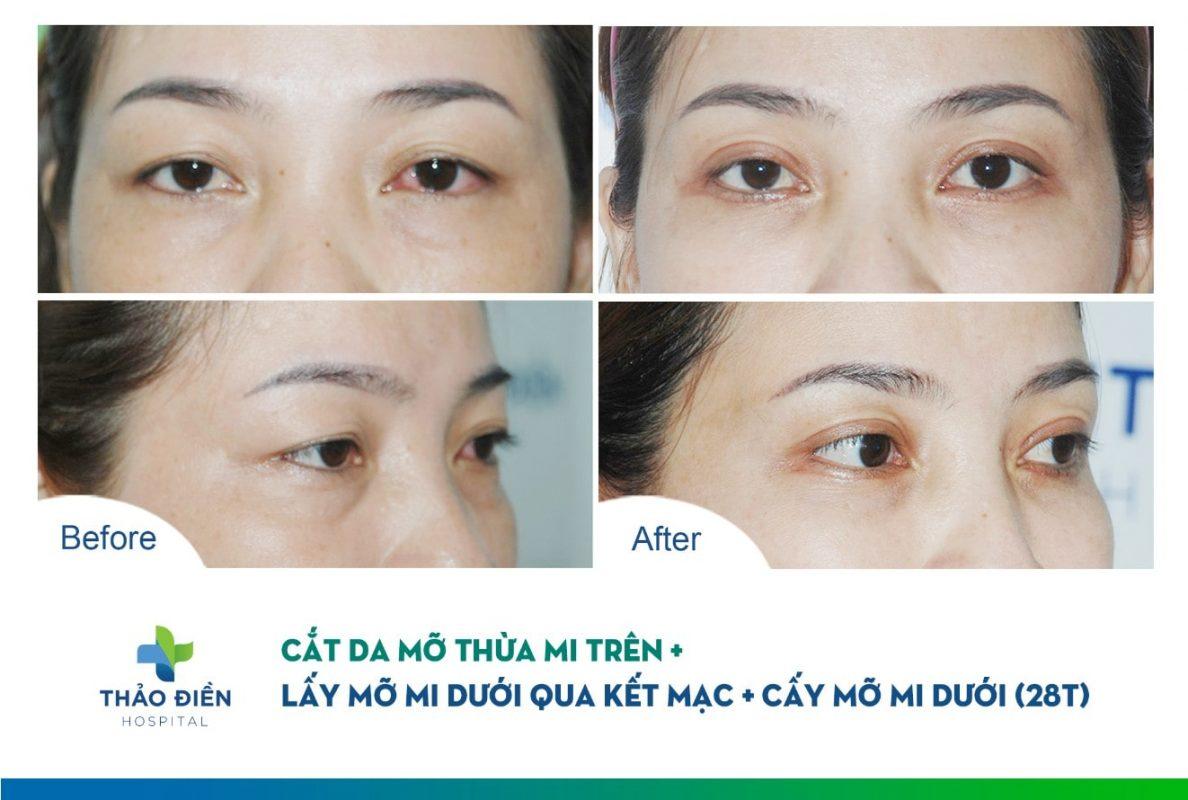 Lấy mỡ thừa mí mắt trên và dưới