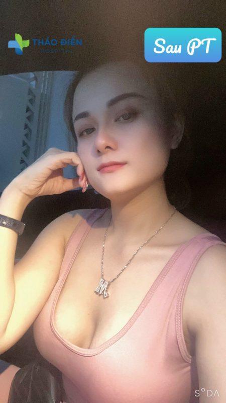 Khách hàng sau khi nâng ngực bằng mỡ tự thân tại Thảo Điền