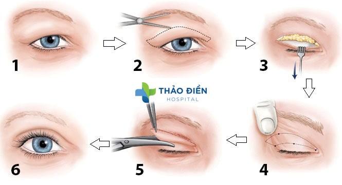 Phương pháp cắt da mỡ thừa mí mắt