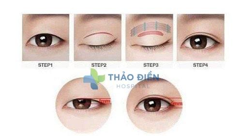 Mô phỏng quá trình cắt mí mắt