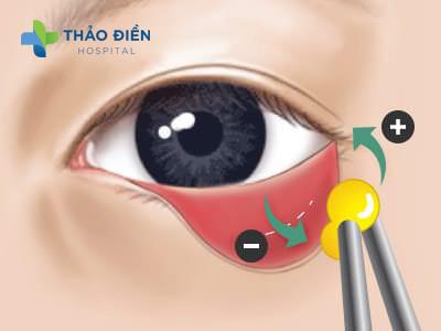 Phương pháp cấy mỡ mi mắt dưới
