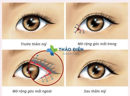 Phương pháp mở rộng góc mắt