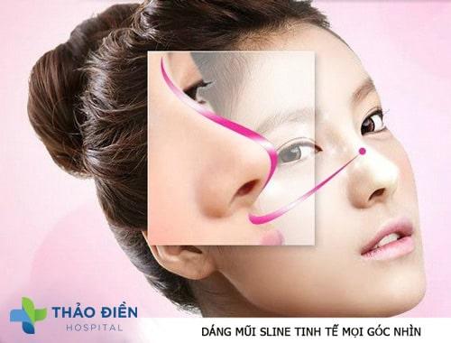 Dáng mũi sau nâng mũi s line