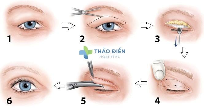 Phương pháp lấy mỡ mí mắt trên