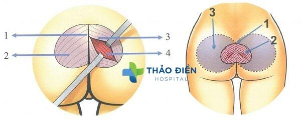 phẫu thuật nâng mông nội soi là gì